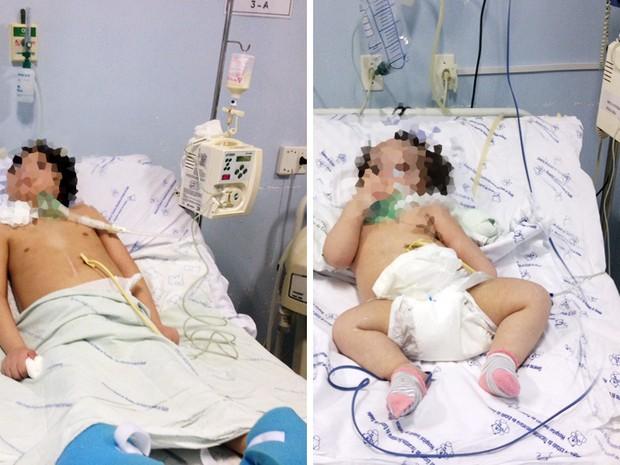 Duas crianças com quadro clínico grave estão sem receber tratamento adequado por falta de materiais
