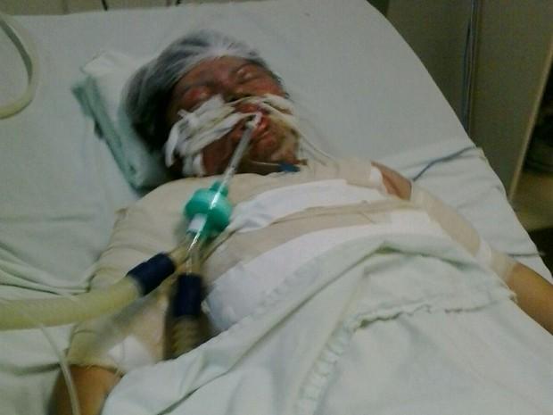 Mulher entrou em coma e já teve duas paradas cardíacas depois de ter sido torturada pelo marido